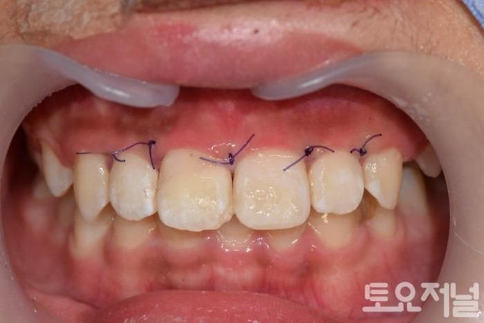 치아의 차절편 부착후 모습.jpg